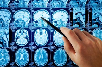 smegenų vėžio hipertenzija)