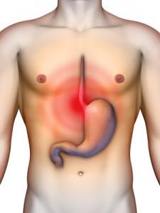 stemplės hipertenzija