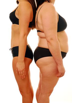 """Programos apie nutukusius žmones. Rusijos svorio metimo programos. Rodyti """"Extreme Makeover"""""""