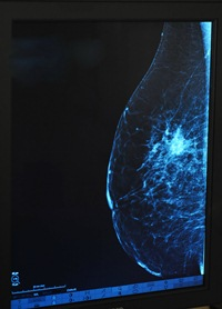 Krūties nuotrauka