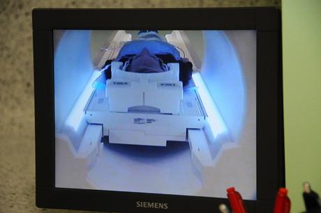 Žmogus magnetinio rezonanso aparate