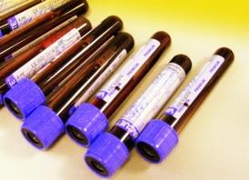 Kraujo tyrimas