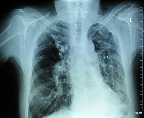 Tuberkuliozės pažeistų plaučių rentgenograma