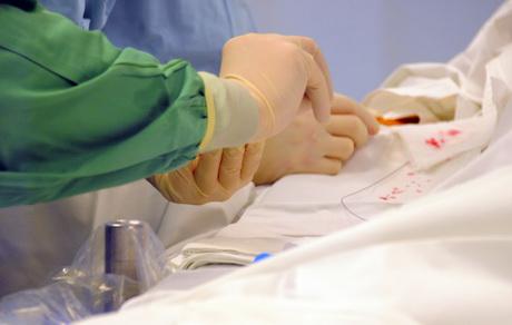 operacija intervencinė kardiologija