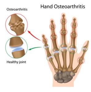Osteoartritas