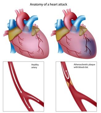 širdies ir kraujagyslių sveikatos skatinimas mokyklose Amerikos širdies asociacija