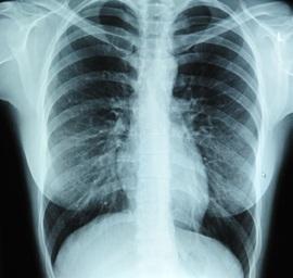 Ką gali ir ko negali parodyti rentgeno nuotrauka?