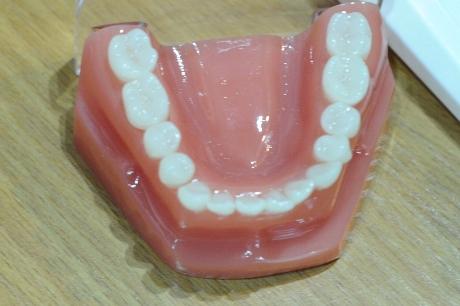 Apatiniai dantys