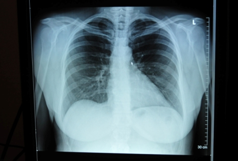 Apsaugokime save ir kitus nuo tuberkuliozės