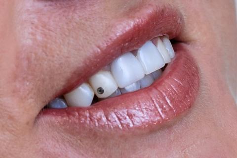Dantų puošmena