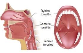 Tonzilės