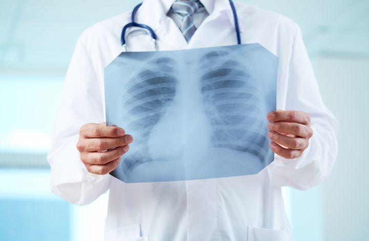 plaučių uždegimas turi svorio