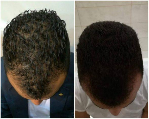 Plaukų slinkimas (Alopecija)