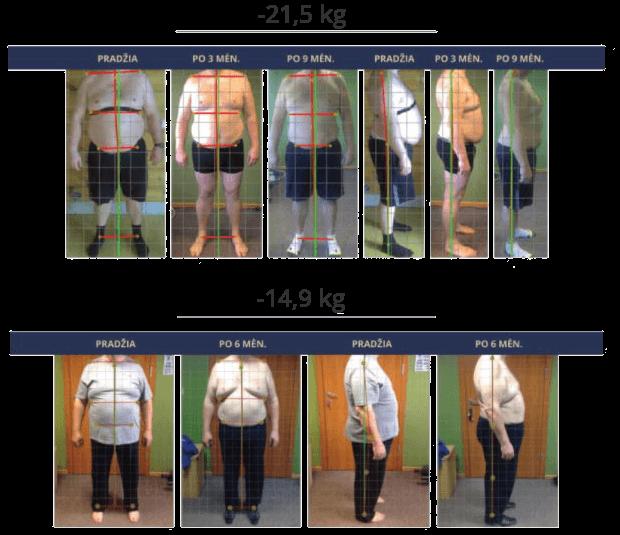 Ar vaikščiojimas tikrai padės numesti svorio? Judėti, kad numesti svorio