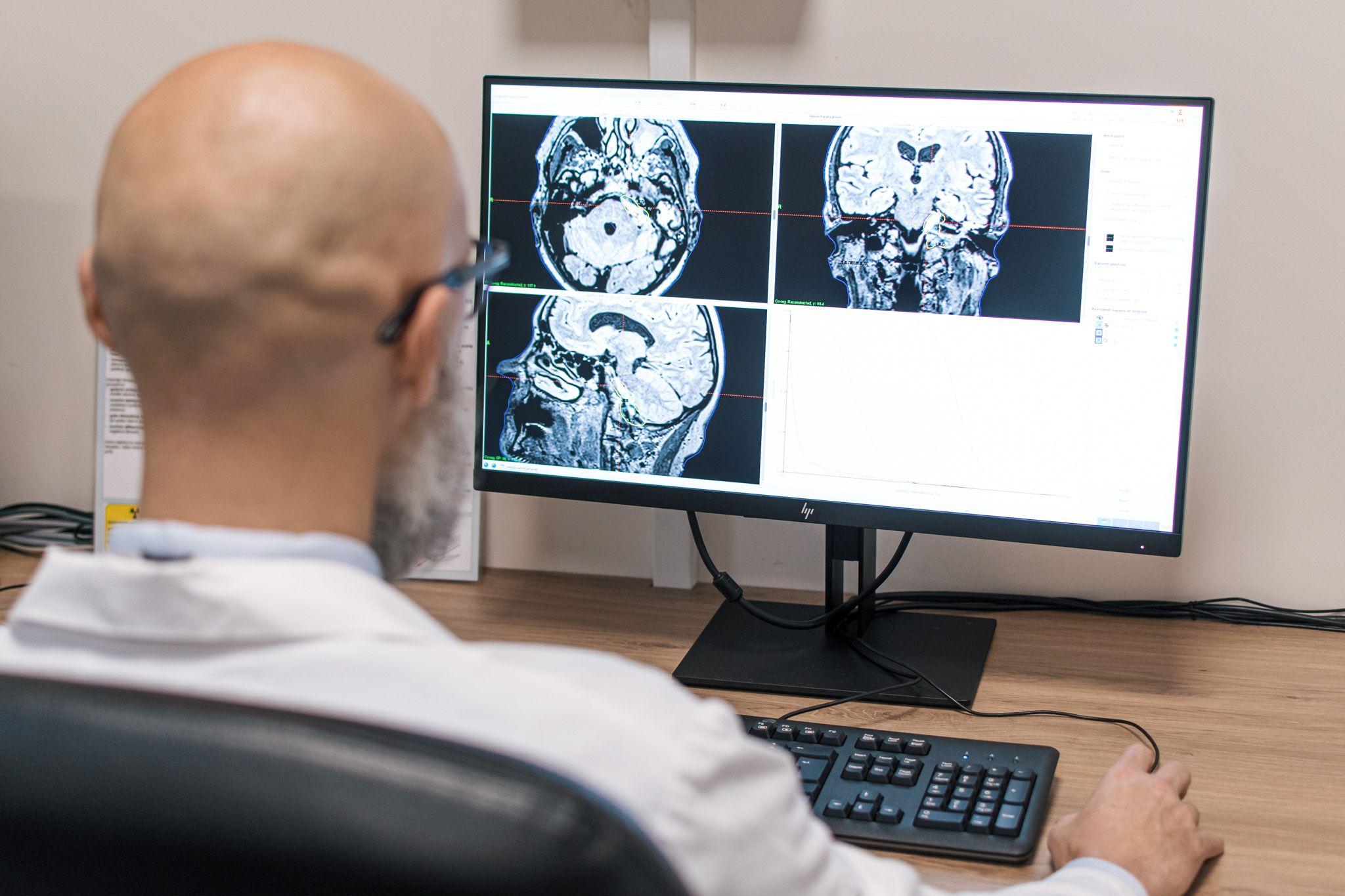Gydytojas apžiūri kompiuterio ekrane smegenų vaizdą