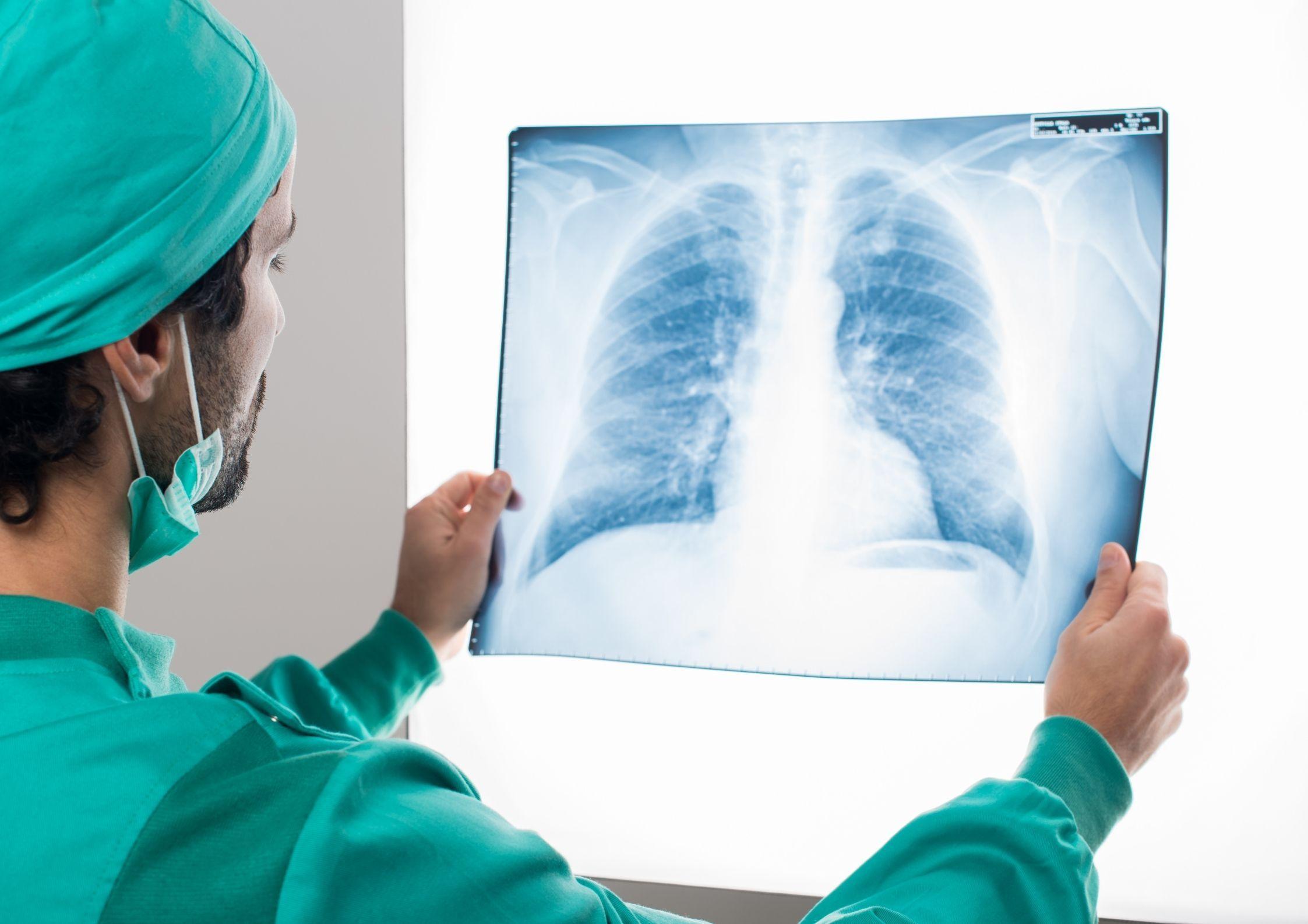 Plaučių rentgenograma