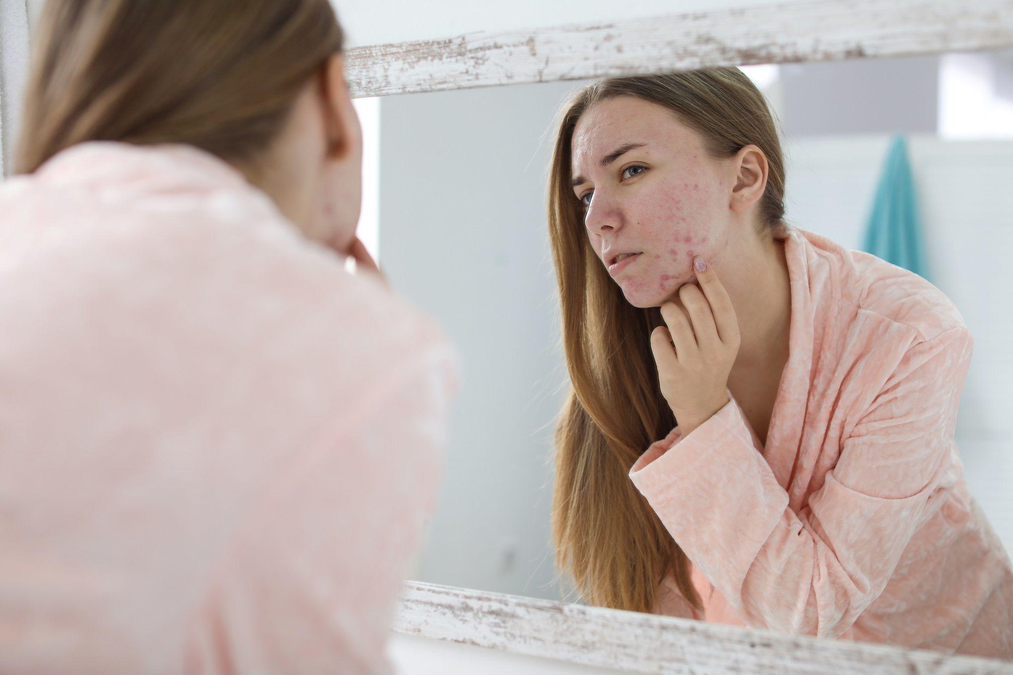 Mergina apžiūri savo spuoguotą odą