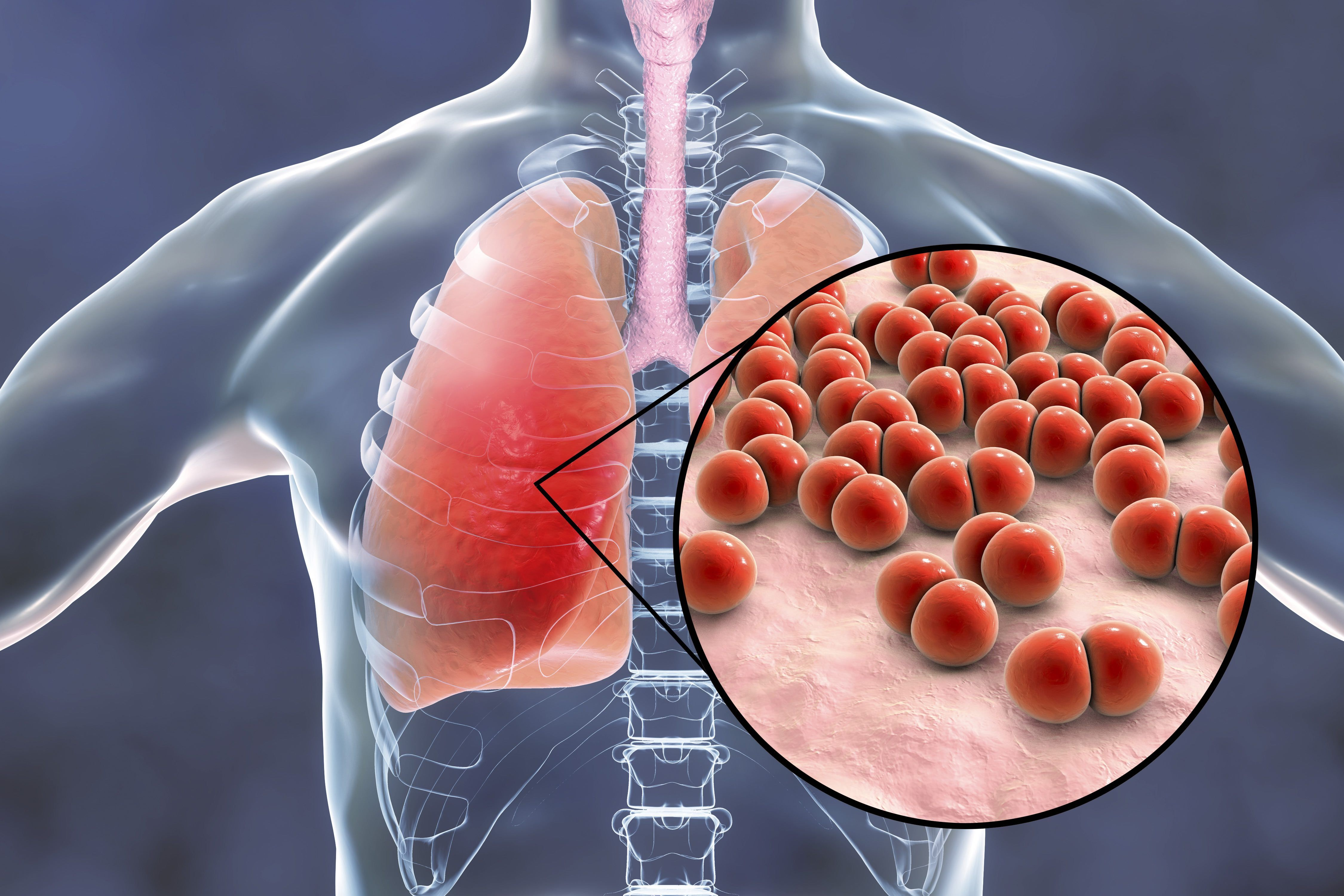 Pneumokoko vaizdas plaučiuose
