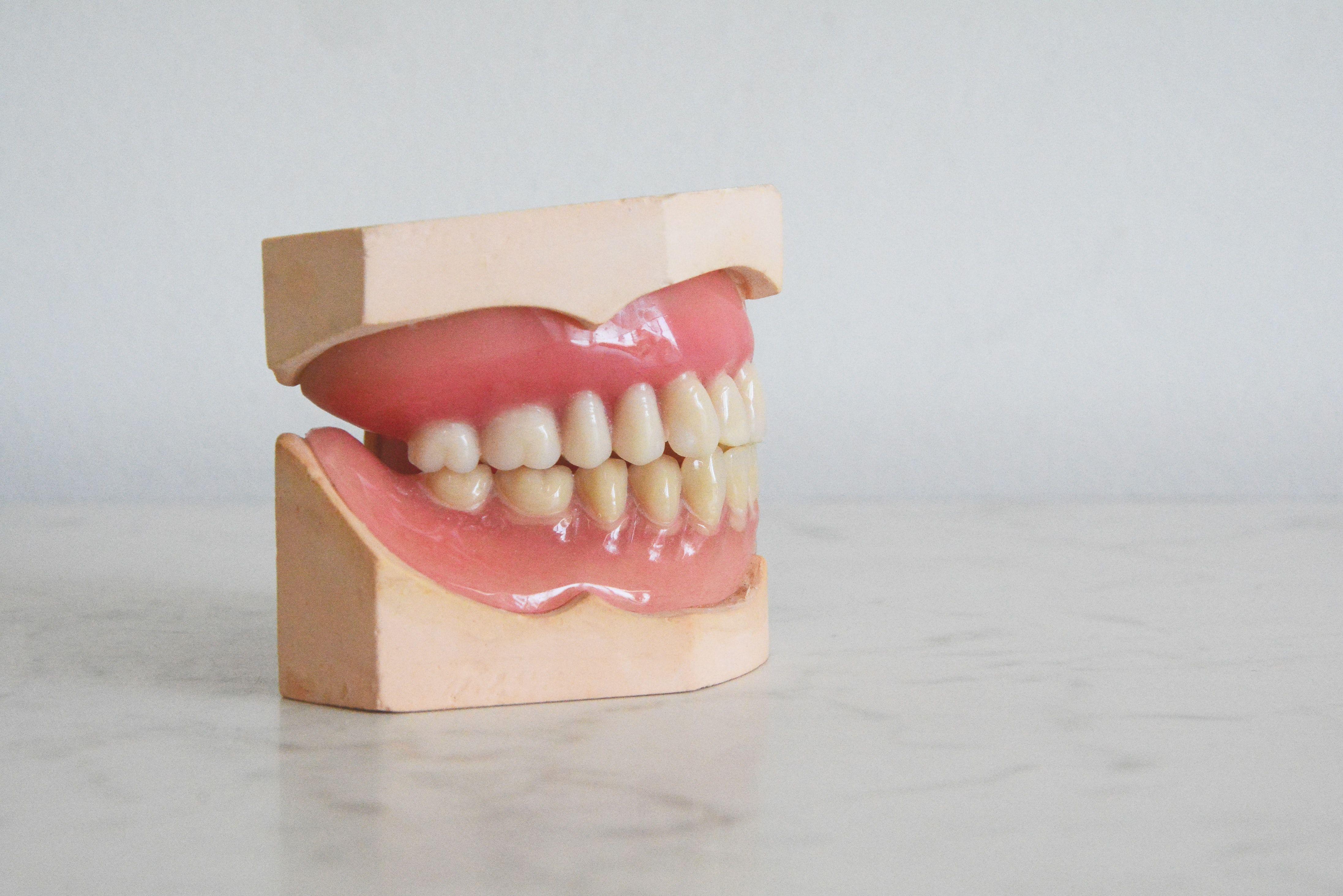 Protezai, vaizduojantys netaisyklingą sąkandį
