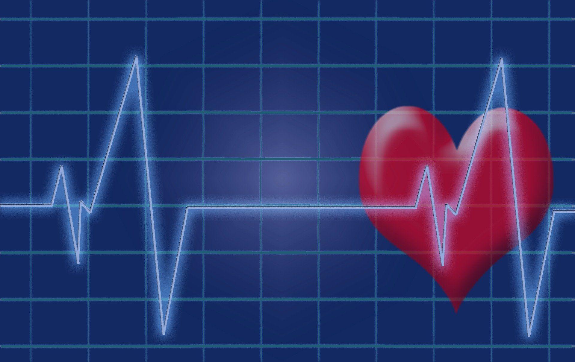 Širdies ir kardiogramos vaizdas