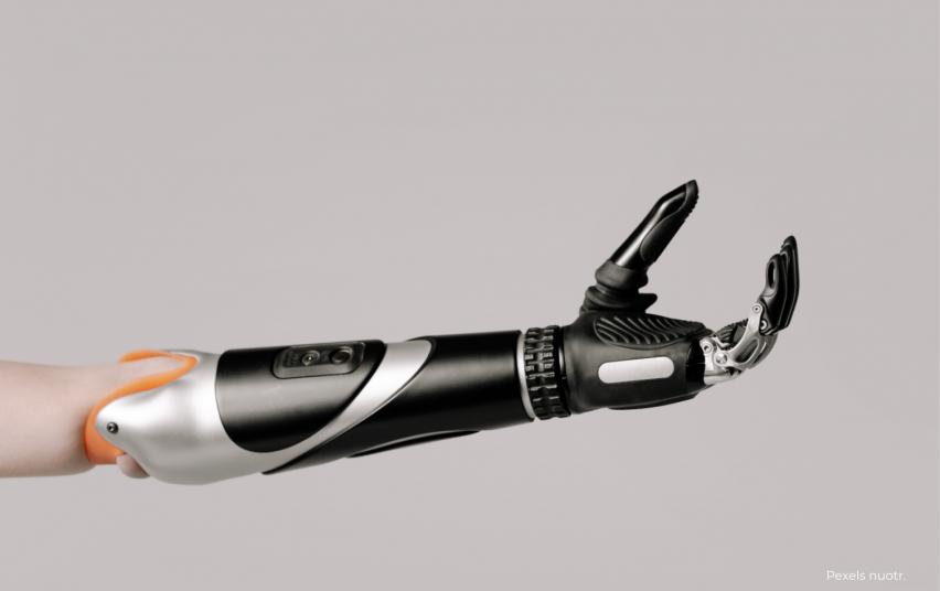 Alkūnės protezas
