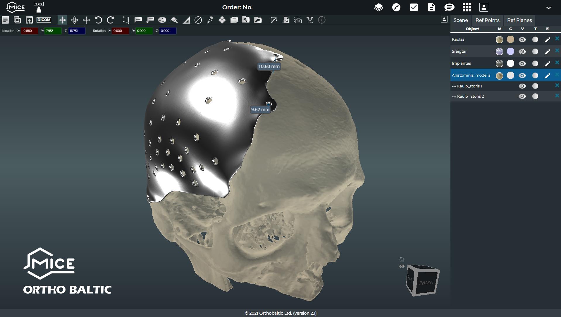 Su 3D priešoperacinio planavimo programa MICE išmatuojamas kaulo storis implanto tvirtinimo vietose