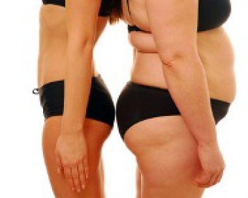Užspaustas sėdimasis nervas dėl stuburo išvaržos
