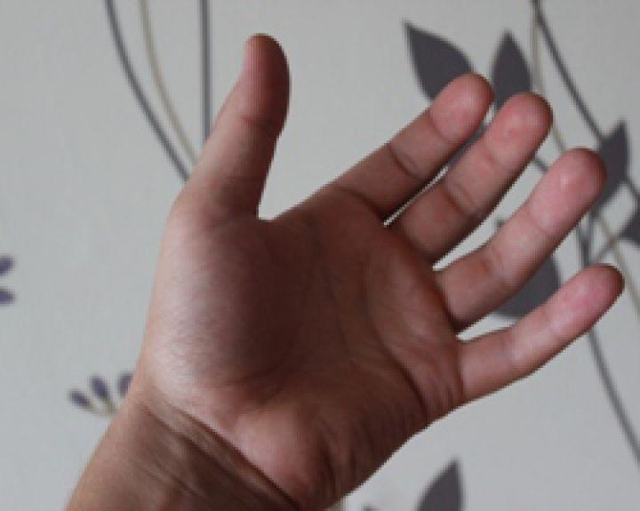 rankų ir kojų tirpimas su hipertenzija