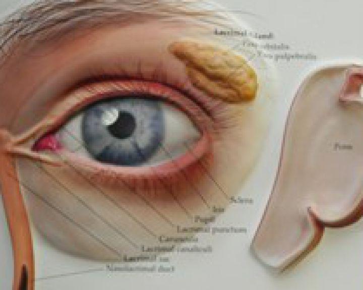 dešinės akies hipertenzija