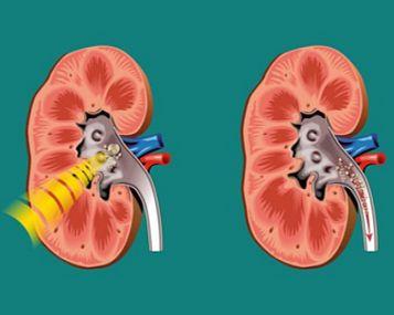 inkstų kraujagyslių, turinčių hipertenziją, ultragarsas kokia yra 2 laipsnio hipertenzijos rizika3