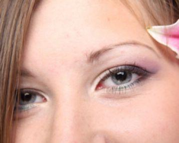 Glaukoma ir katarakta – klastingos akių ligos