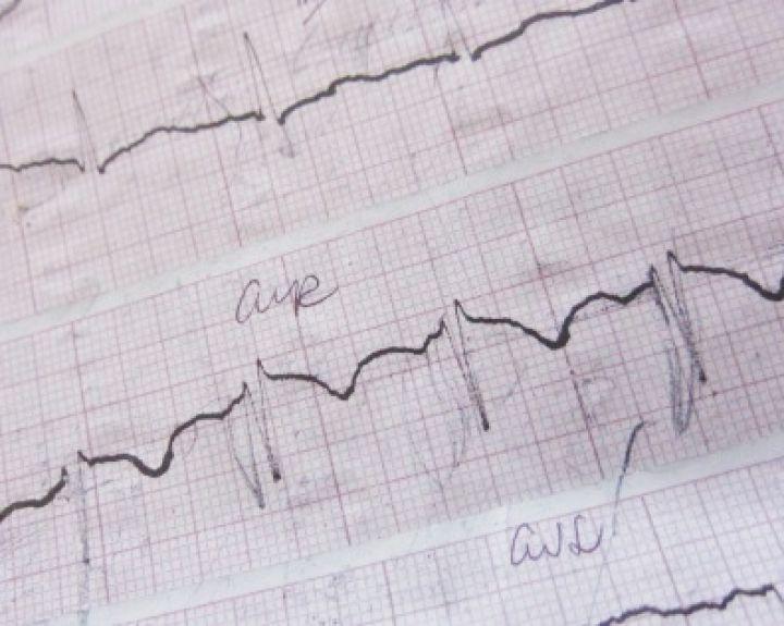pėdų vonia nuo hipertenzijos sveikatos širdies susitraukimų dažnis per minutę