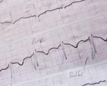Sinusinė širdies aritmija: kas tai, simptomai, gydymas, galimi komplikacijos - Hipertenzija