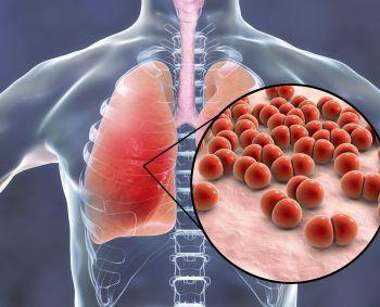 svorio sumažėjimas dėl plaučių uždegimo pasyvus riebalų praradimas