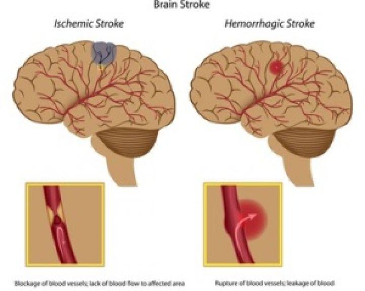 preparatai smegenų kraujagyslėms nuo hipertenzijos