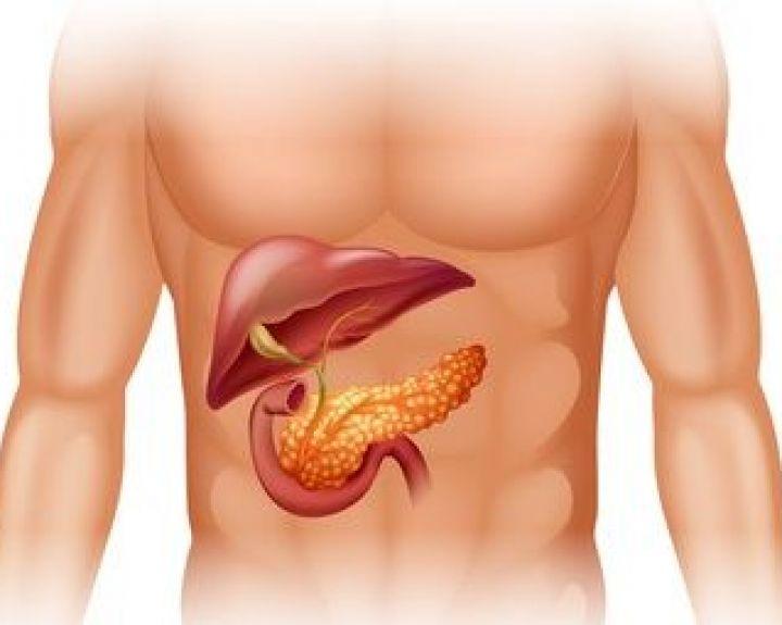 Pankreatito priežastys – ir imuninės, ir genetinės, ir idiopatinės