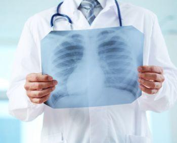 plaučių uždegimas ir hipertenzija