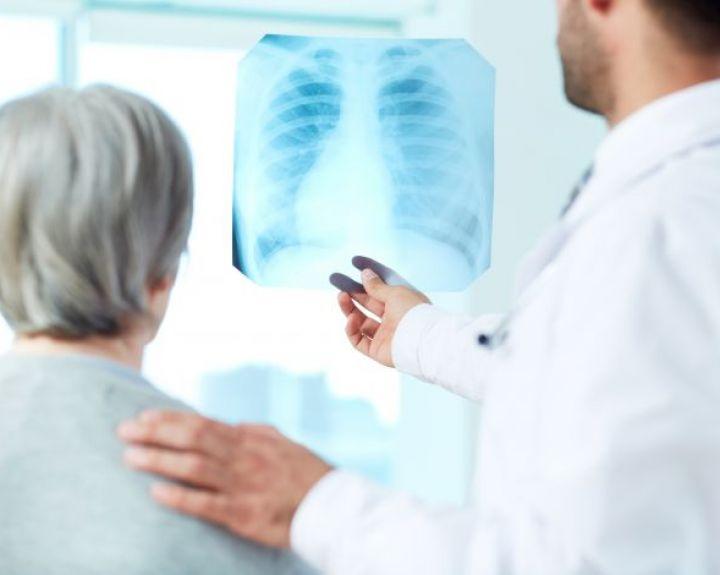 plaučių uždegimas turi svorio)
